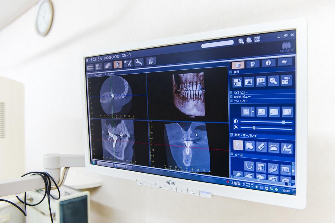 診療台でのCTによる説明システム